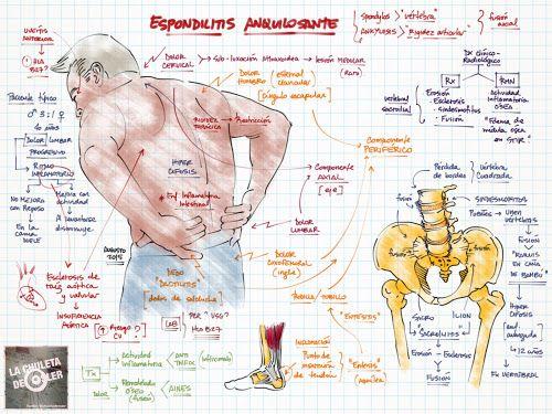 La Chuleta de Osler: Reumatología: Espondilitis anquilosante