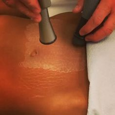 Treatment: Coolbeam laser skin resurfacing Purpose: Removal of stretch marks How it works: New production of collagen, and pigment ✏ Note: Individial results may vary Phone: 310-746-5233 Personalized Private Consultation Fee: $500 Email: info@epione.com Website: www.epione.com Location: Epione Beverly Hills Technique: Laser collagen remodeling Anesthesia: None ⏰Time it takes: 30 mins ⌛️Average number of sessions: 2-4 Recovery: Average 1-3 days of skin redness ...