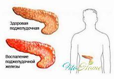 Панкреатит: лечение народными средствами