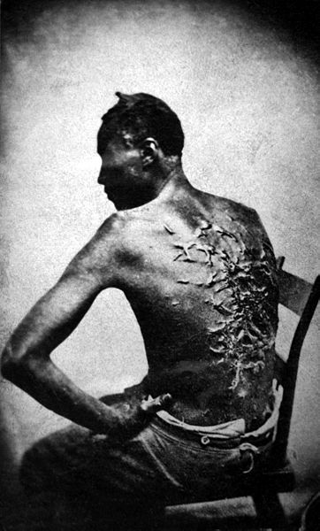 "Scars of a whipped slave (April 2, 1863, Baton Rouge, Louisiana, USA. Original caption: ""Overseer Artayou Carrier whipped me. I was two months in bed sore from the whipping. My master come after I was whipped; he discharged the overseer. The very words of poor Peter, taken as he sat for his picture."""