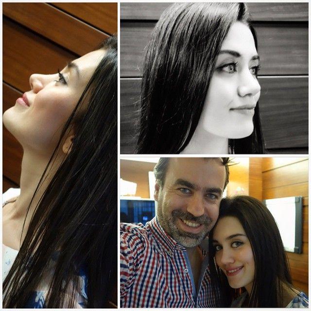 Diyarbakırdan gelen #ultrasonikrinoplasti hastam sevgili Mesil 'in 2.5 ay kontrolünde hatıra resimleri çekmeden duramadık... #kalemlecizilmisgibi bir #emreilhanburnu daha ... Tüm #rhinoteam ekibini kutlarım