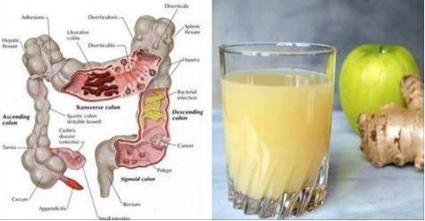Il succo per ripulire colon e intestino: ecco come zenzero, limone e mela rimuoveranno tutte le tossine