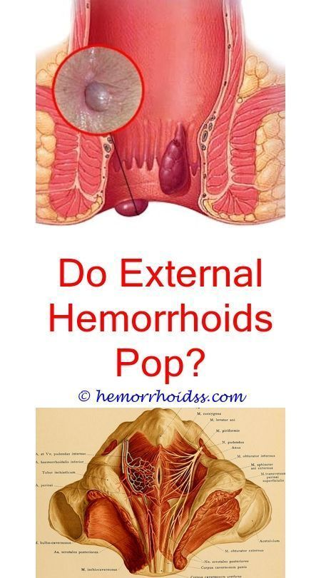 What does hemorrhoids mean-6351