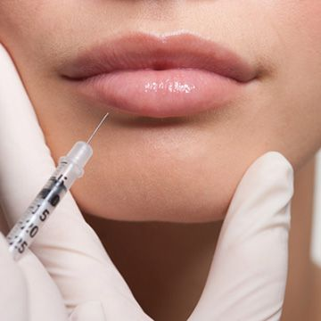 6 Things to Know Before Considering Lip Injections