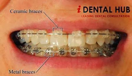 Cheap Braces For Adults