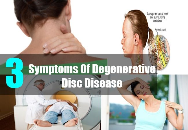Degenerative disc disease in neck usually affects the cervical vertebrae. Degenerative disc disease in the cervical region is much less common than that of lumbar ...