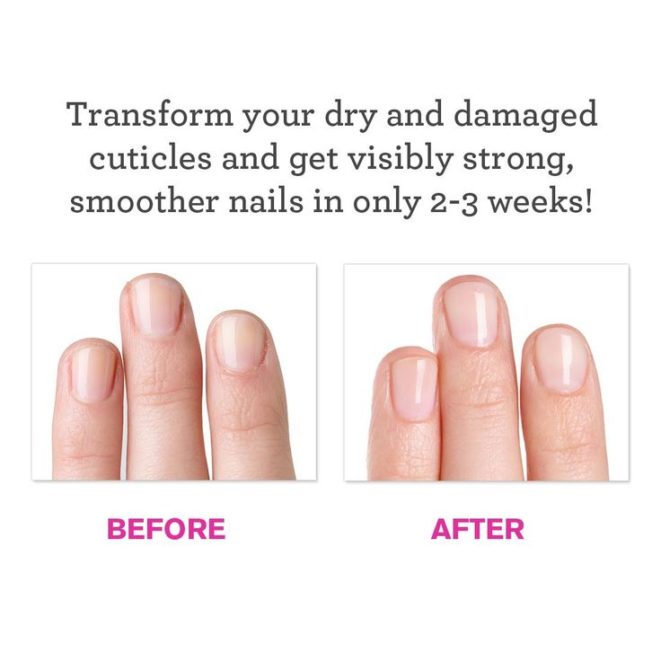 231 best Nail Care Natural Tips images on Pinterest | Nail care ...