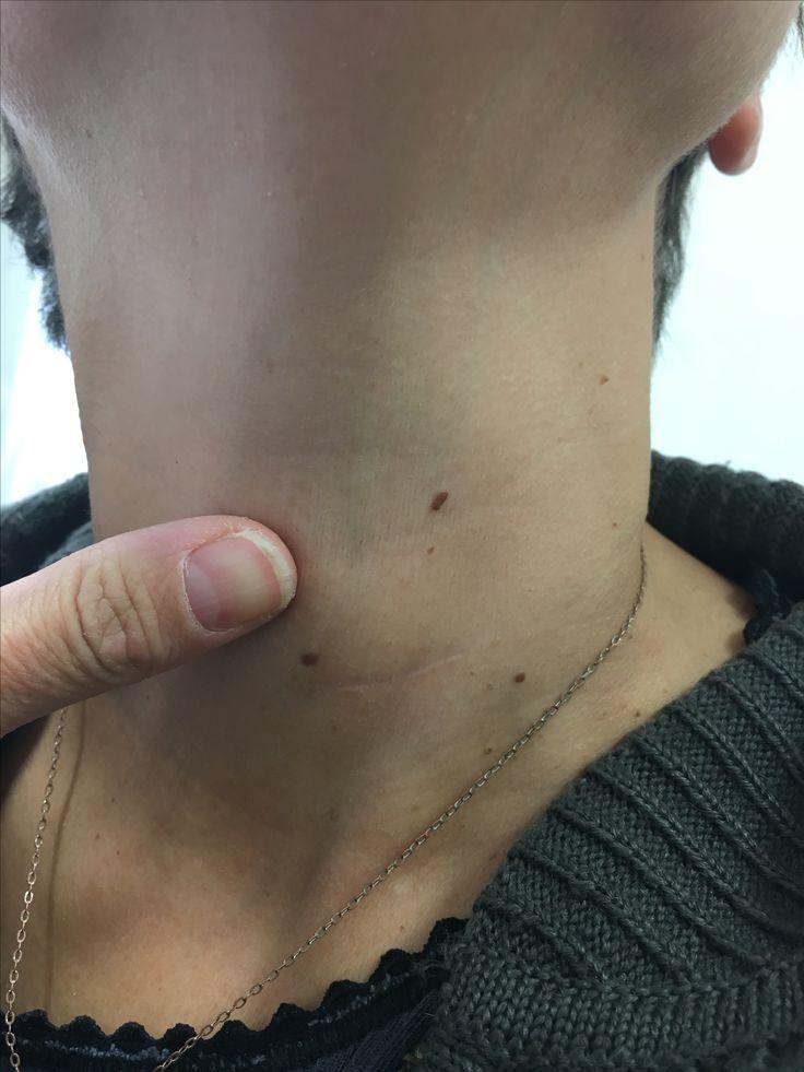 Prothese de disque cervicale : cicatrice à 6 mois