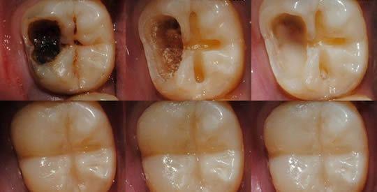 Come bloccare e curare la carie in modo naturale, e prevenire il decadimento del dente