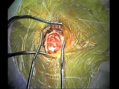 Part 1 MVD surgery for Trigeminal Neuralgia