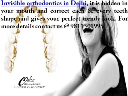 Delhi dentist implant well famous Invisible Orthodontics in Delhi http://www.delhi-dentist-implant.in/orthodontic-treatment-in-delhi.html