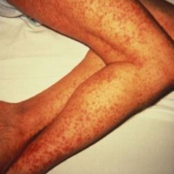 How to Get Rid of Age Spots On Legs See our large age-spot photo collection.