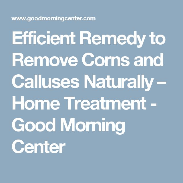 Efficient Remedy to Remove Corns and Calluses Naturally – Home Treatment - Good Morning Center