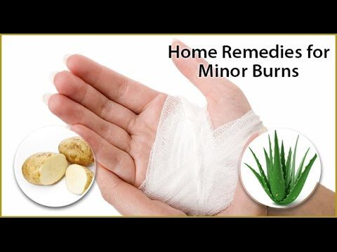 Natural remedies for burns - YouTube