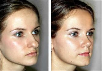 Fotos cirurgia plastica de nariz 3
