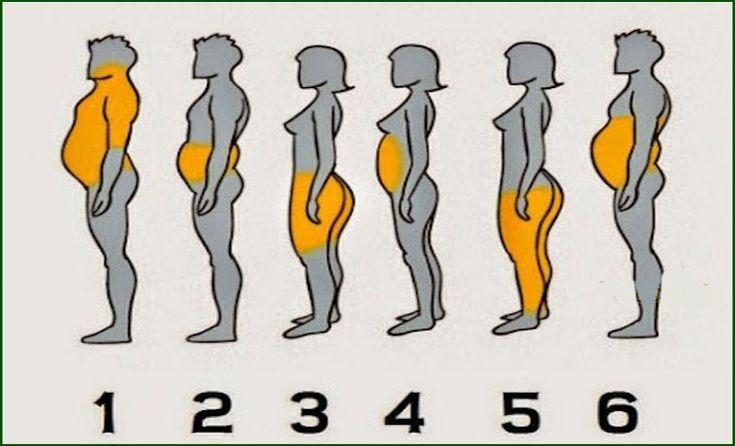 A Ciência já analisou e definiu 6 tipos de obesidade causada por diversos factores. Aqui vais ver a qual grupo pertences, e como resolver o problema da obesidade de acordo com cada tipo específico, ao qual cada um se encaixa com as suas peculiaridades.