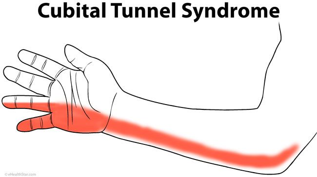 1000 images about cubital tunnel syndrome on pinterest for Tingling in hands and feet anxiety