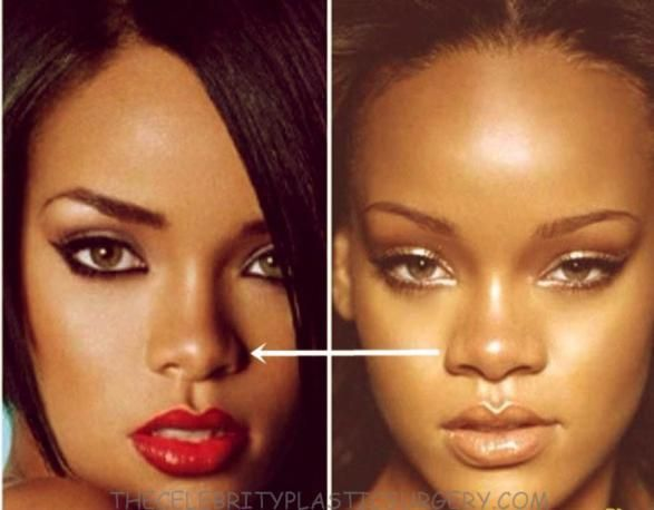 Rihanna Rhinoplasty Before And After Rihanna Nose Job Plastic Surgery Gone Wrong In 2019