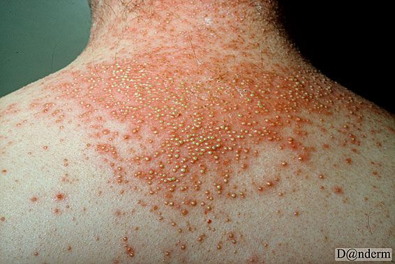 The main feature of pustular psoriasis is the development of white blisters of pus 3