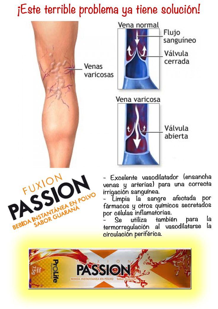 #100%salud #Fuxion #Passion #cerovarices Más información en: fuxion.salud.bienestar@gmail.com