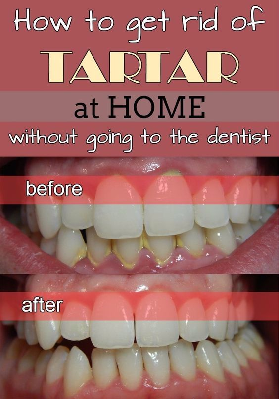 How To Get Rid Of Tartar At Home Without Going To The Dentist