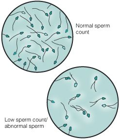 Scientists find clue sperm infertility cells cure men