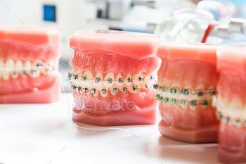 Orthodontics dental braces on teeth model to align teeth