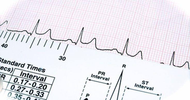 ¿Cuánto gana un cardiólogo al año?. Los médicos del corazón, que incluyen a los cardiólogos generales y a los cirujanos cardiovasculares, son responsables de la atención y el tratamiento del sistema cardiovascular, por lo que su trabajo es vital para la salud general de una persona. Esta intensa responsabilidad se traduce en un salario promedio mucho más alto que en otras ...
