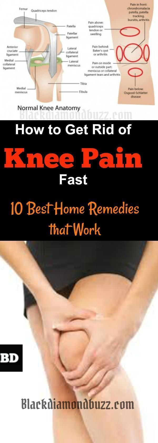 How to Get Rid of Knee Pain Fast |10 Best Home Remedies For Knee Pain The causes of knee pain are associated with many health problems which include osteoarthritis, rheumatoid, arthritis, and unhealthy diet, lack of vitamin D, knee injuries and surgery. https://www.blackdiamondbuzz.com/how-to-get-rid-of-knee-pain-fast/ #Diettipsforthyroidproblems #Thyroidproblemsanddiet #Exerciseforthyroidproblems