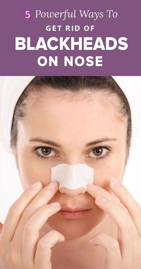 5 Powerful Ways To Get Rid Of Blackheads On Nose