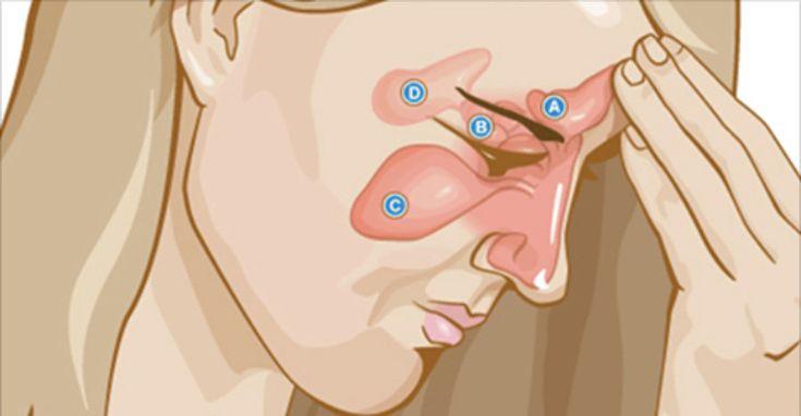 Pare de sofrer com asma, rinite e sinusite - experimente estes poderosos remédios caseiros! | Cura pela Natureza