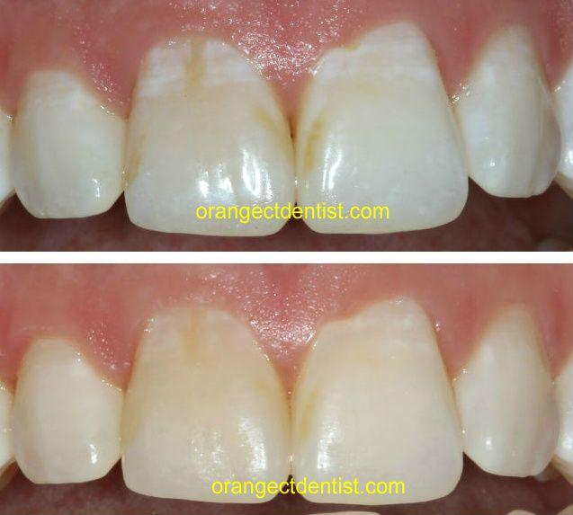 17 Best Images About Dental Photos On Pinterest Spot