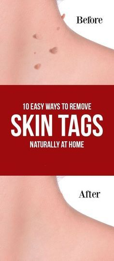 Having flawless skin is a dream come true for all women but sometimes that can be hindered due to some skin ailments. One among them is tags on skin. These skin tags are extended skin flaps or extended skin colored growths that can be present around the b