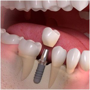 There is no better, long-lasting option to restoring a missing tooth than a dental implant fitted with a crown. An implanted-supported crown is far superior.