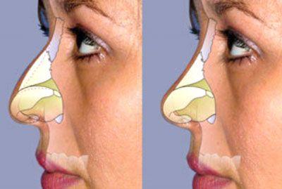 La rinoplastia es la cirugía estética que más crece