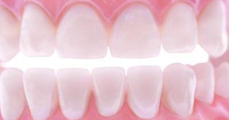 Cómo reparar un diente con pegamento de cianoacrilato. El pegamento de cianoacrilato no es algo que surge en el curso de una conversación normal, dental o de otro modo. Sin embargo, es fácilmente reconocible por sus marcas, que incluyen Krazy Glue y Super Glue. Mientras el pegamento de cianoacrilato es peligroso para el nervio esencial, de vida, los dientes a menudo necesitan una extracción dental o ...