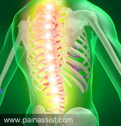 Spinal Stenosis: Lumbar spinal stenosis is the most common, but cervical spinal stenosis is more dangerous.. read: http://www.painassist.com/spinal-stenosis