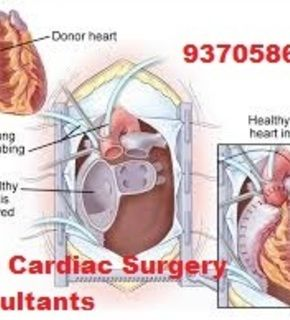 the good artificial heart heart transplant At present, even with the best lvad or the best total artificial hearts, you  if they  begin to fail, start to say, well, what about a heart transplant.