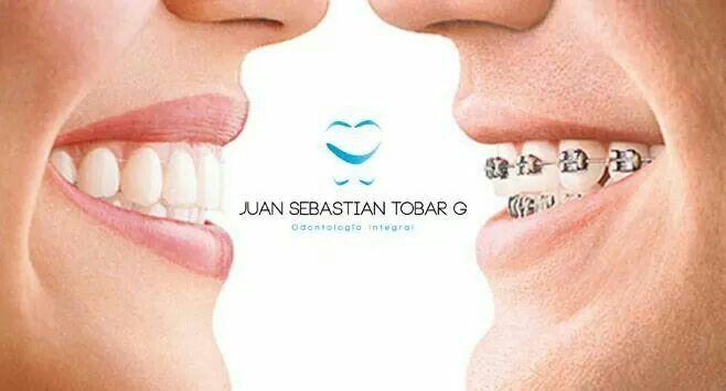 Ortodoncia, el mejor diseño de sonrisa