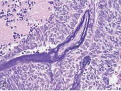 Azzopardi effect -  small cell carcinoma lung.
