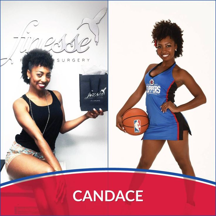 LA Clippers Spirit dancer, Candace, had a blast when she came by our Finesse office in Newport Beach for laser hair removal!