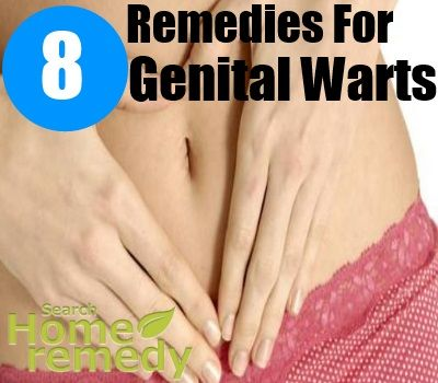 Home Remedies For Std Warts