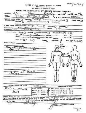 Elvis Presley´s Death Autopsy Photo