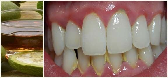 Fogkő barna elmeszesedett anyag a fog felületén, a fogak romlását és ínygyulladást okoz. Az orvosok az állapították meg az íny...