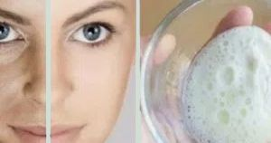 The combination of coconut oil and baking soda is capable of cleansing your skin deeply, penetrating into the pores and effectively elimina...