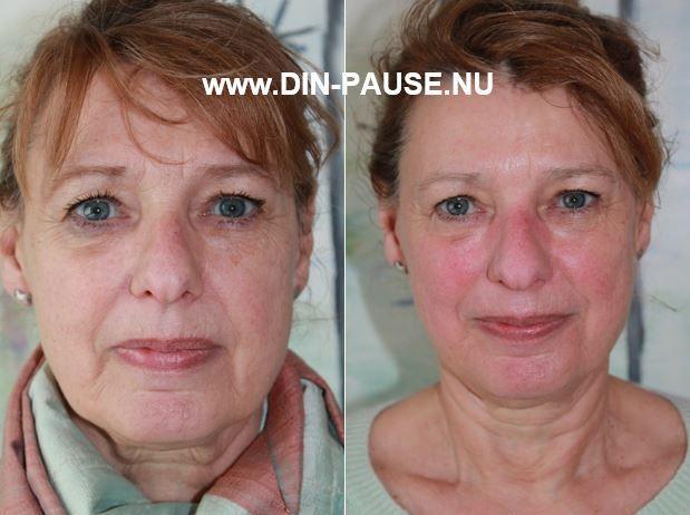 Japansk Lifting behandling 100% naturlig Før & Efter 10 behandlinger. www.DIN-PAUSE.NU