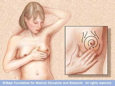 Breast Cancer Overview - American Cancer Society
