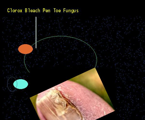 Clorox bleach pen toe fungus - Nail Fungus Remedy. You have nothing to lose! Visit Site Now