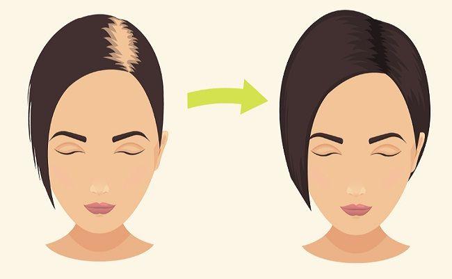 Não é nenhum segredo que o bicarbonato de sódio é super versátil. Você pode usá-lo em para cozinhar ou limpar, ou mesmo para o tratamento de certas questões médicas. Mas você já pensou em colocá-lo em seu cabelo? Sim, isso mesmo. Bicarbonato de sódio tem alguns benefícios surpreendentes para o seu cabelo! Você pode usá-lo no lugar de seu shampoo regular para dá-lo um impulso. É um produto seguro e acessível que naturalmente limpa e deixa seu cabelo se sentindo saudável. Se você é cético…