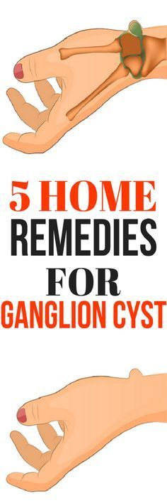 5 HOME REMEDIES FOR GANGLION CYST